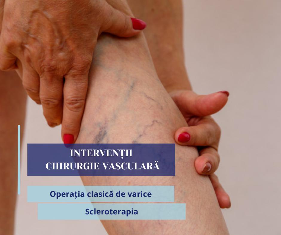 chirurgie vasculara (1)