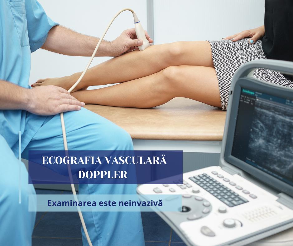 chirurgie vasculara (3)